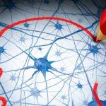 Neurological manifestations of Covid-19