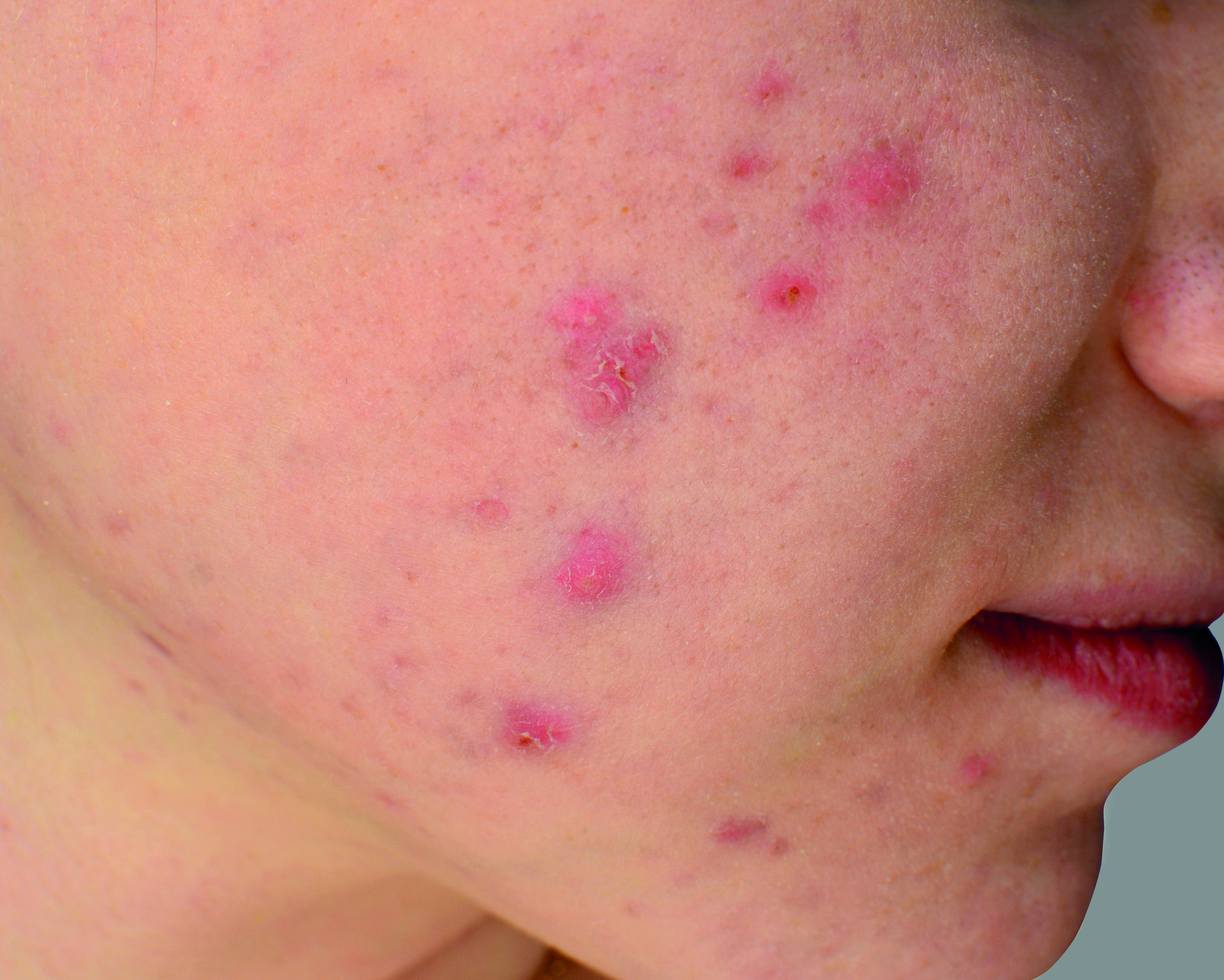 The challenge in defining acne and rosacea
