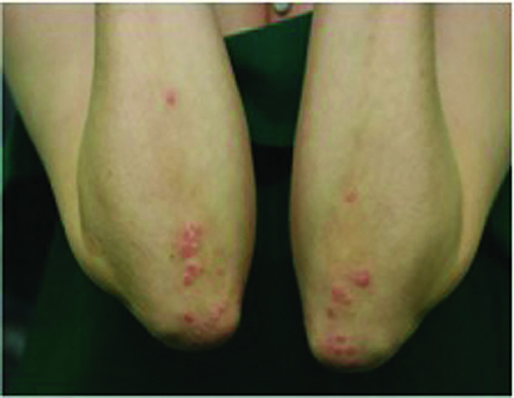 Patients with psoriasis reluctant to reveal condition