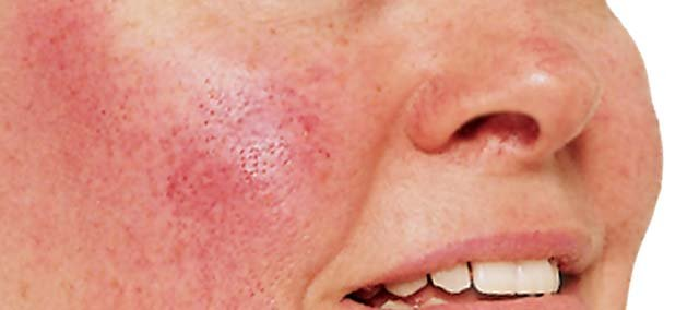 Psychological impact of acne and rosacea should be recognised