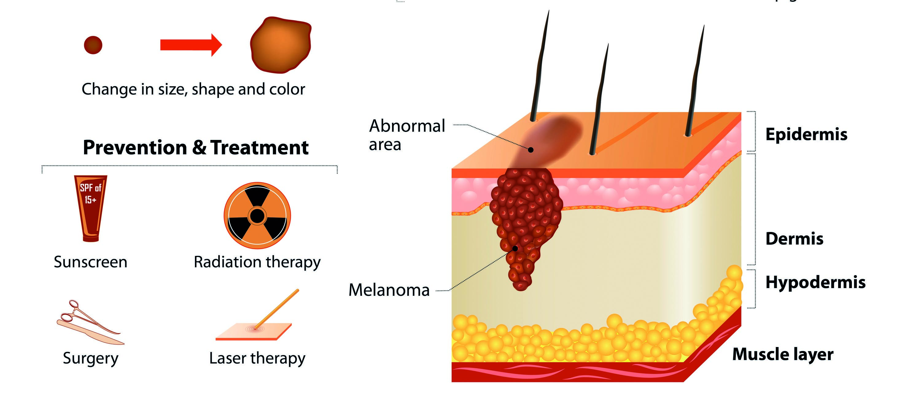 Treating actinic keratosis and Bowen's disease can help prevent skin cancer