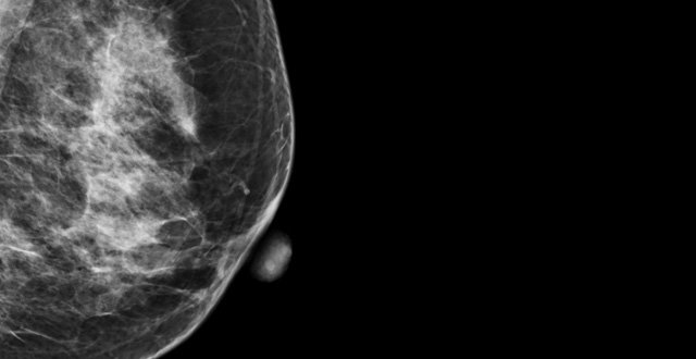 Direct access to mammography for GPs being examined