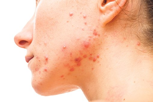 The treatment of acne