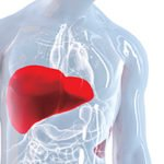 Primary sclerosing cholangitis on the rise in Europe