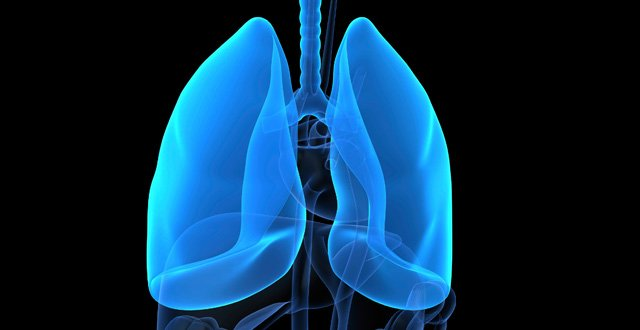 Scleroderma patients potential candidates for lung transplantation