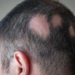 Update on alopecia at hair and nails symposium