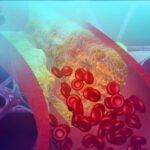 CPD Module- Cholesterol lowering diet