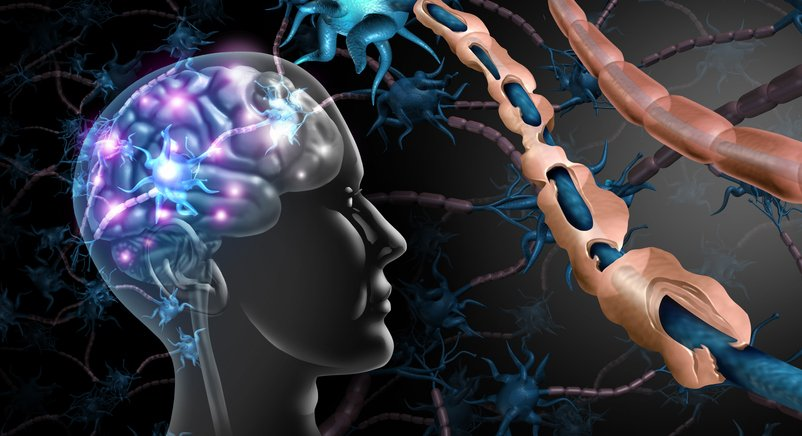 Multiple sclerosis: Diagnosis, management and impact of Covid-19