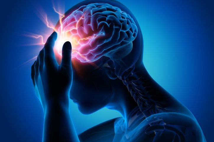 Migraine and healthcare professionals: The European picture